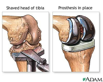 total knee replacement surgery, the second time around: learn from, Muscles