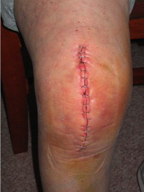 Knee Replacement Surgery Scar Tissue http://nosleepingdogs.wordpress.com/2009/06/10/total-knee-replacement-surgery-the-second-time-around-learn-from-our-experience/